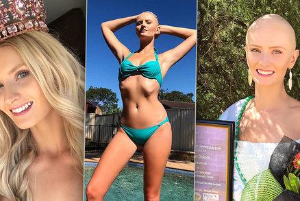 Královně krásy (26) diagnostikovali nevyléčitelnou rakovinu: Lékaři jí velkou šanci nedávají