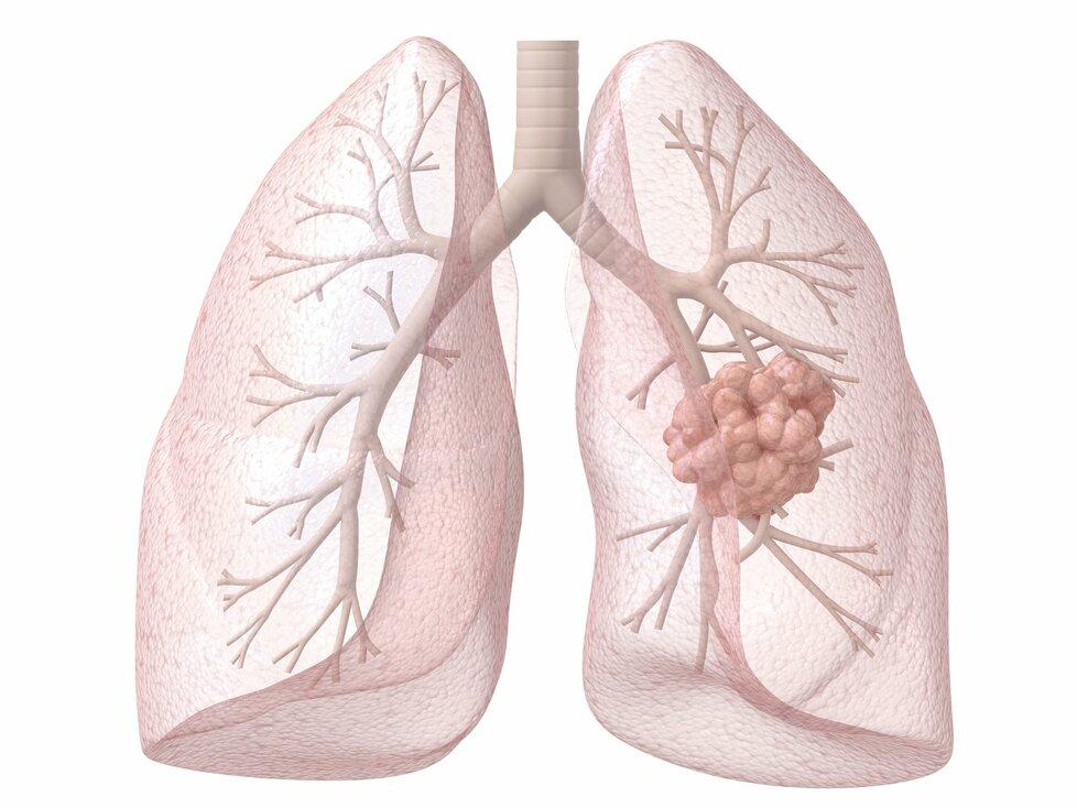 Pravá plíce napadená zhoubným nádorem