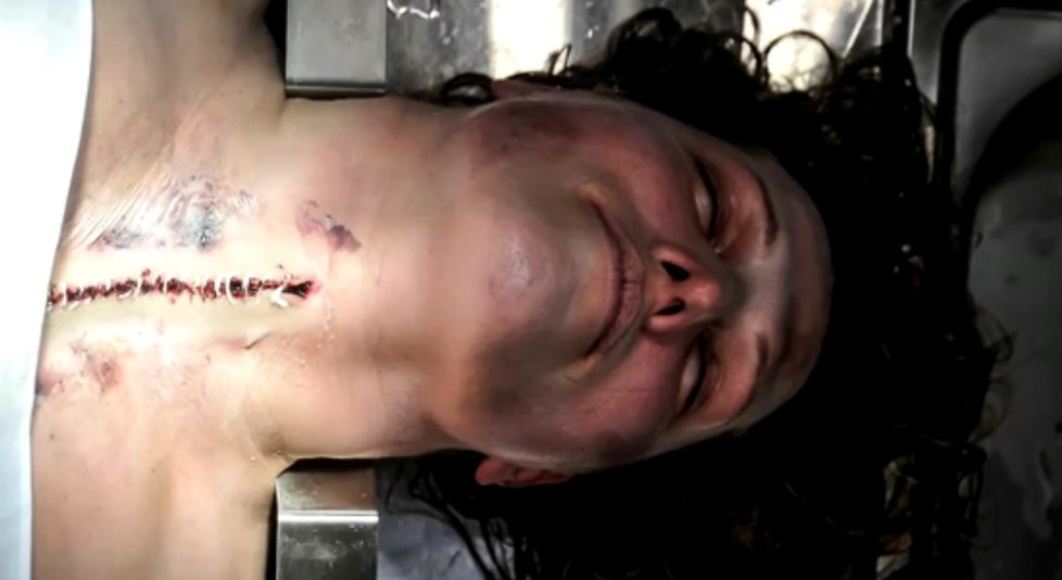 Dívce vrah rozřízl hrdlo.