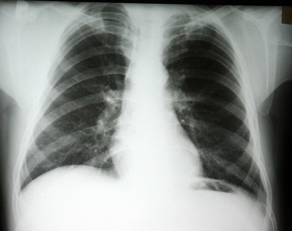 Plíce pacienta nakaženého TBC