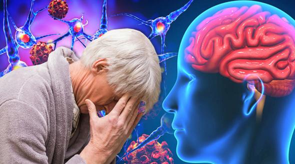 Alzheimerova choroba je zatím neléčitelná.