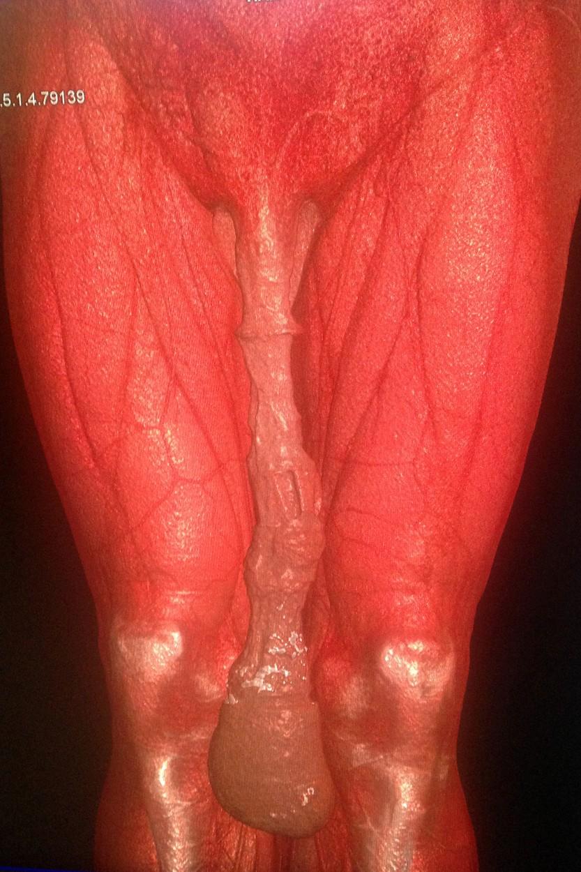 Velkou část Mexičanova penisu tvoří vytahaná předkožka.