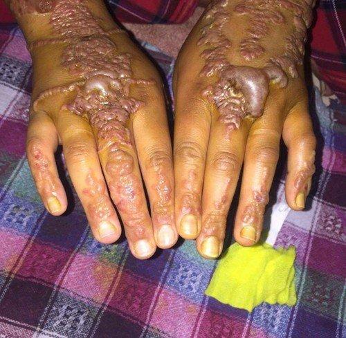 Tetovací hena jí zohyzdila obě ruce