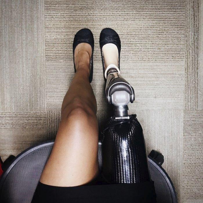 Její bionická noha se dá ovládat přes chytrý telefon