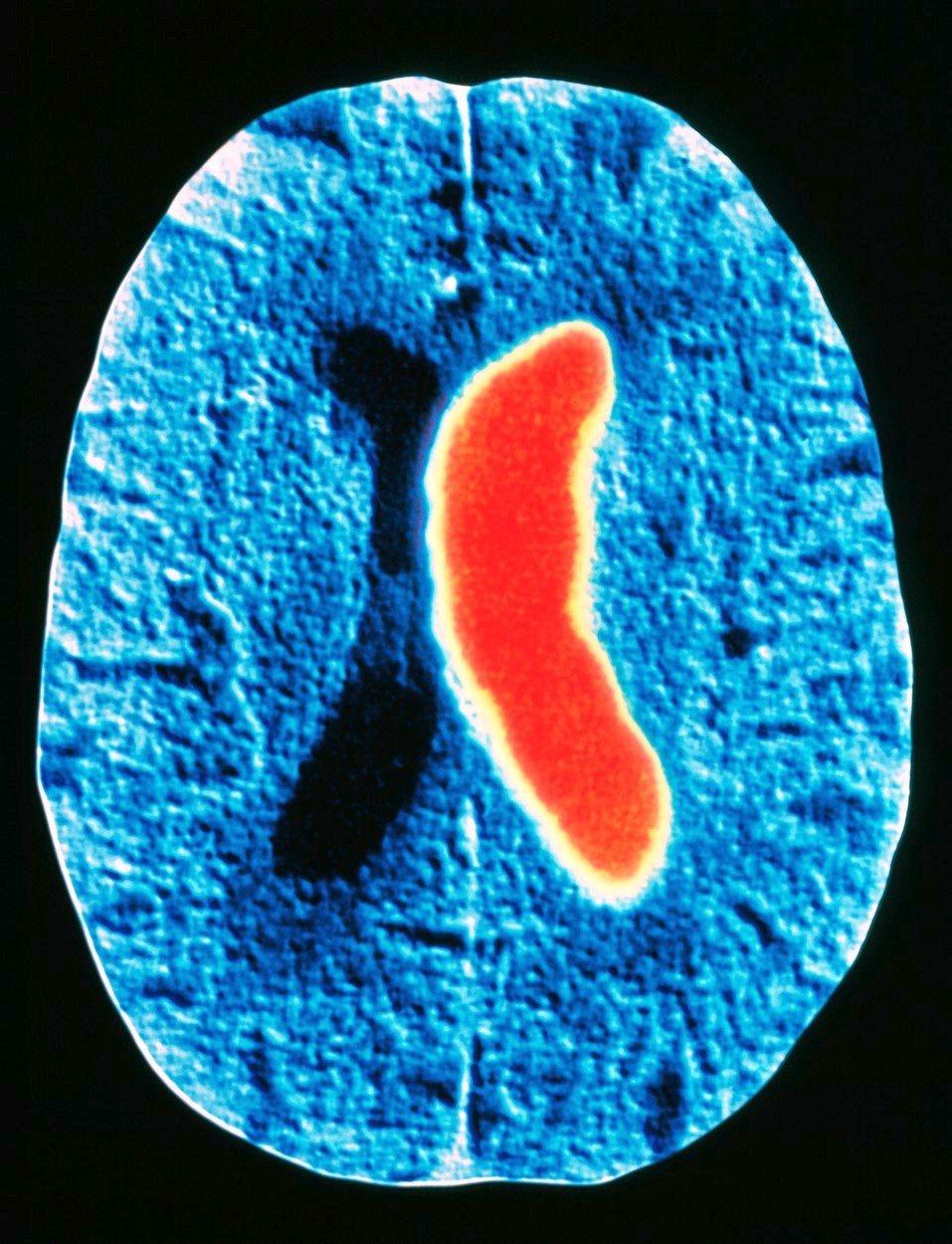 Mozek zasažený cévní mozkovou příhodou
