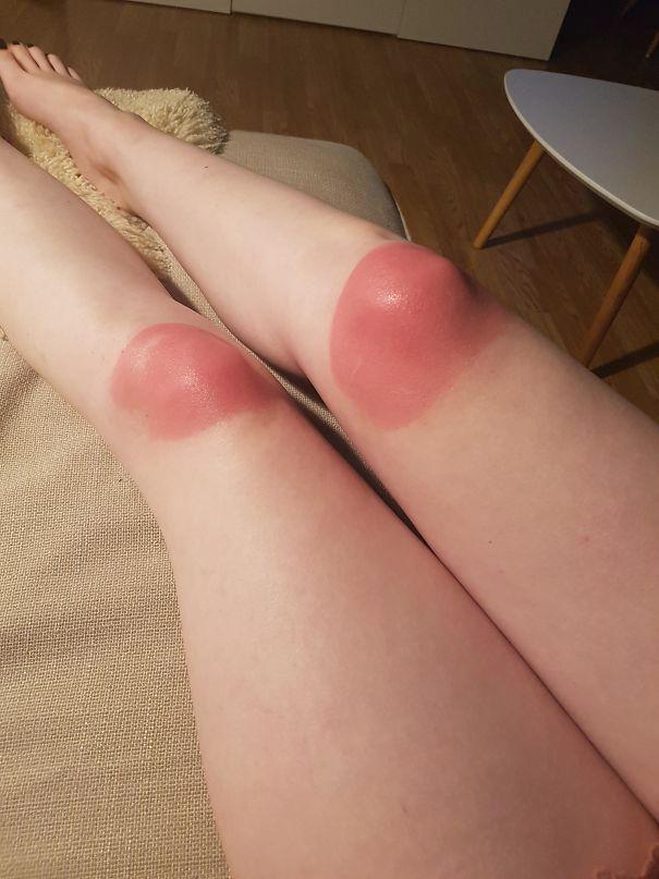 V létě nenoste roztrhané kalhoty.