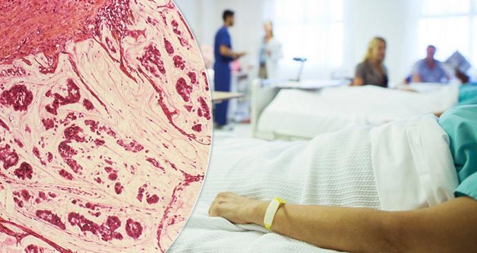 Seznamovací tipy pro muže s rakovinou