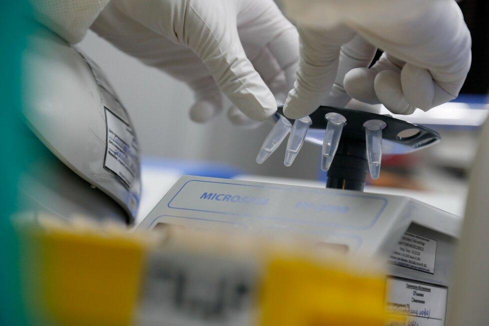 Na vývoji vakcíny pracují i vědci v Rusku.