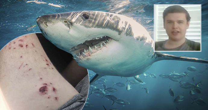 Chlapce napadl žralok jen kousek od pláže: Otec se vrhl do boje o život svého dítěte.