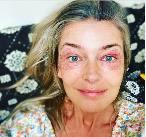 Pavlína Pořízková podstoupila omlazovací zázkrok, ale kolem očí má monokly