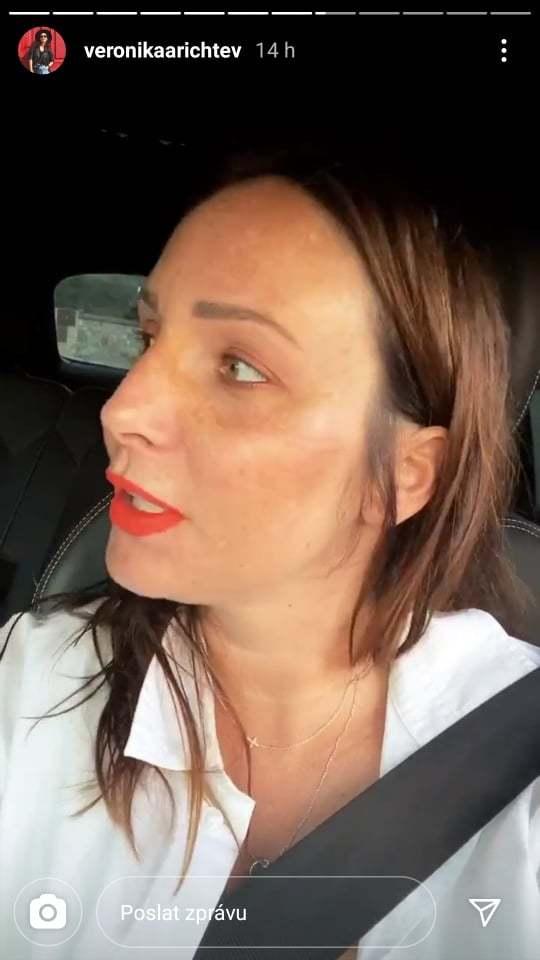 Veronika Arichteva přiznala, že se v těhotenství potýká s výskytem pigmentových skvrn v obličeji.