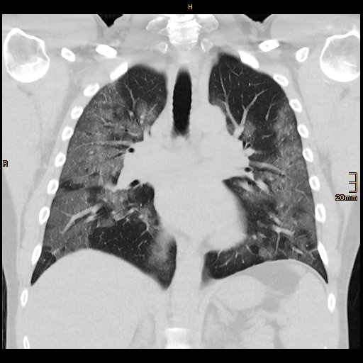 Plíce pacienta nakaženého koronavirem