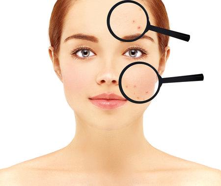 Trápí vás kožní problémy? Ptejte se na radu v našem chatu s dermatoložkou!