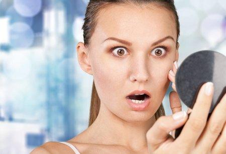 Nenechte se překvapit akné během menstruace! Víme, jak se jej zbavit.