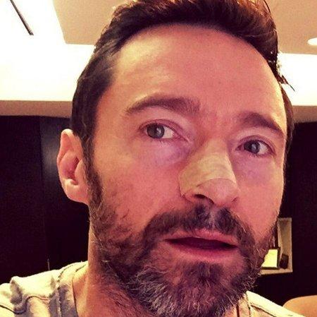 """""""Příklad toho, co se stane, když nepoužíváte opalovací krémy. Bazaliom, nejmírnější forma rakoviny kůže, ale i přesto závažná. Používejte, prosím, ochranné prostředky proti slunci a choďte na prohlídky,"""" napsal australský herec k fotce."""