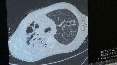 Tuberkulóza je vysoce infekční.