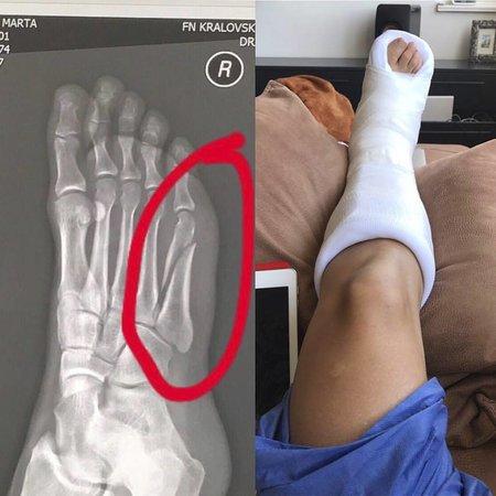 Marta Jandová si zlomila nohu