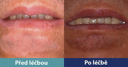 Léčbou lze vyléčit i poruchu pigmentace v obličejové části