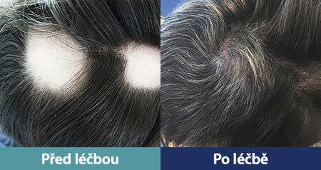 Plazmová léčba dopomohla k opětovnému nabytí vlasů