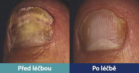 Nehet před a po léčba speciálním laserem CoolBreeze