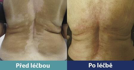 Pacientka s rozsáhlým vitiligem před léčbou a následně po léčbě. Bílá místa opět zapigmentována.