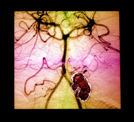 Na prasklou cévní výduť náhle umírá kolem 250 Čechů ročně. Zákeřná nemoc se nevyhýbá ani dětem.