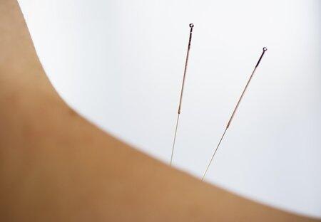 Ilustrační foto. Sonnymu má akupunktura pomoci ovládnout své chování. Platí ji daňoví poplatníci.
