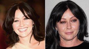 Tahle rakovina sžírá tvář Brandy z Beverly  Hills 90210. Herečka svádí vyčerpávající boj