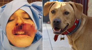 Pes z útulku zaútočil na svou paničku: Roztrhal jí obličej!