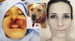 Vlastní pes jí utrhl kus obličeje: Štěpánka psa dává převychovat