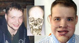 Alexej (29) přežil brutální útok medvěda: Takhle vypadá opravdový Revenant!