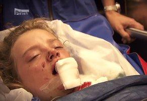 Zuzana (12) z Nemocnice Motol: Kůň jí rozkopl čelist a zuby!