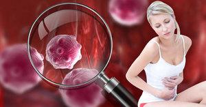 Papírová kůže, výrůstky v žaludku: Vzácné nemoci můžete mít i vy