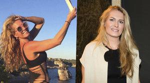 Menzelová šokovala plastického chirurga: Chce si nechat odříznout kus stehen!