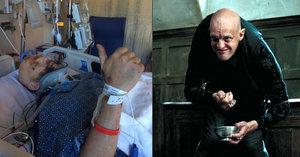 Herec z Harryho Pottera skončil na JIPce: Zlámaná žebra, prasklá plíce, poraněná krční páteř!