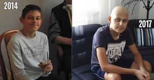 Jakub (16) akutně potřebuje kostní dřeň: Pomoci můžete i vy, stačí trocha krve