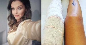 To je sexy pacientka! Kubelková po operaci vyrábí župánková sexy selfie