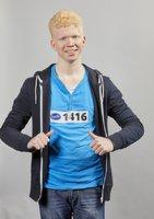 Téměř slepý albín ze SuperStar: Diváci se mu chtějí složit na speciální brýle