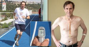 Duchoslav krátce po operaci srdce: V 54 stupních běhal po střeše!