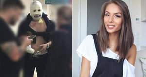Matka Týnuš Třešničkové promluvila o jejím stavu: Je celá spálená od pasu nahoru!