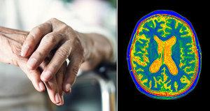 Alzheimerem trpí stále mladší lidé. Boty jim končí v troubě a mobil v lednici