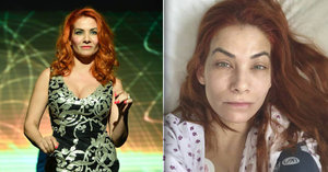 Eva Decastelo po děsivé alergické reakci: Zpátky na kapačkách!