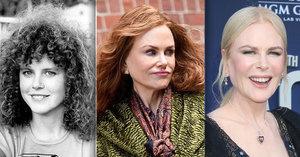 Už dost, Nicole! Hollywoodská hvězda Kidmanová ztrácí tvář kvůli botoxu