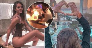 Komplikace v léčbě popálené Týnuš, šokuje partner krásné youtuberky!