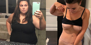 Měla tolik kůže navíc, že ji čeká už pátá operace! Mladá lékařka se bála, že zemře