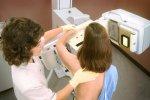 Takhle vypadá vyšetření na mamografu.