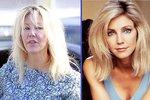 Mrcha z Melrose Place: Proboha, co se jí stalo s obličejem?