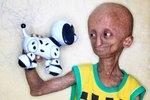Nihal Bitla trpí nemocí, která až osmkrát urychluje stárnutí lidského organismu.