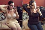 Zhubla o 65 kilogramů, na její tělo ale není kvůli 20 kg povislé kůže hezký pohled