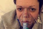 Sprej se ženě dostal do plic, látky v něm obsaženy ji málem zabily.